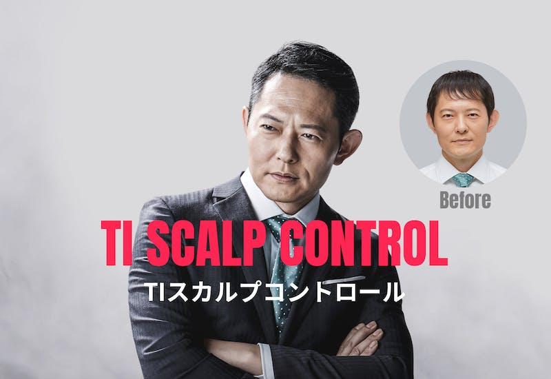 「TIスカルプコントロール」で本格育毛ケア