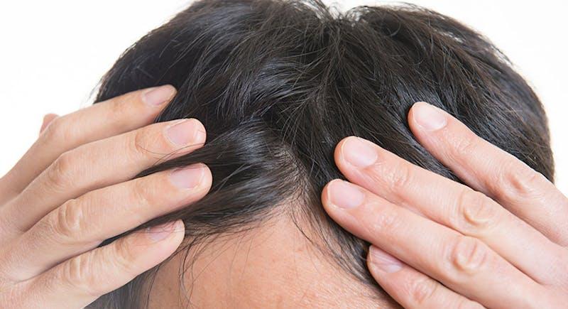 生え際など、気になる部分だけ増毛はできますか?