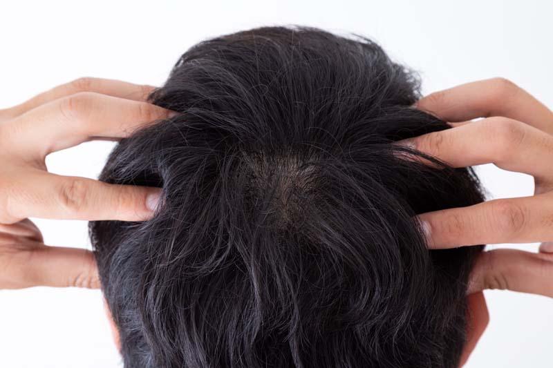 つむじ 正常 な 【写真あり】つむじはげの判断基準|正常なつむじとの違いは頭皮の見え方や抜け毛の髪質