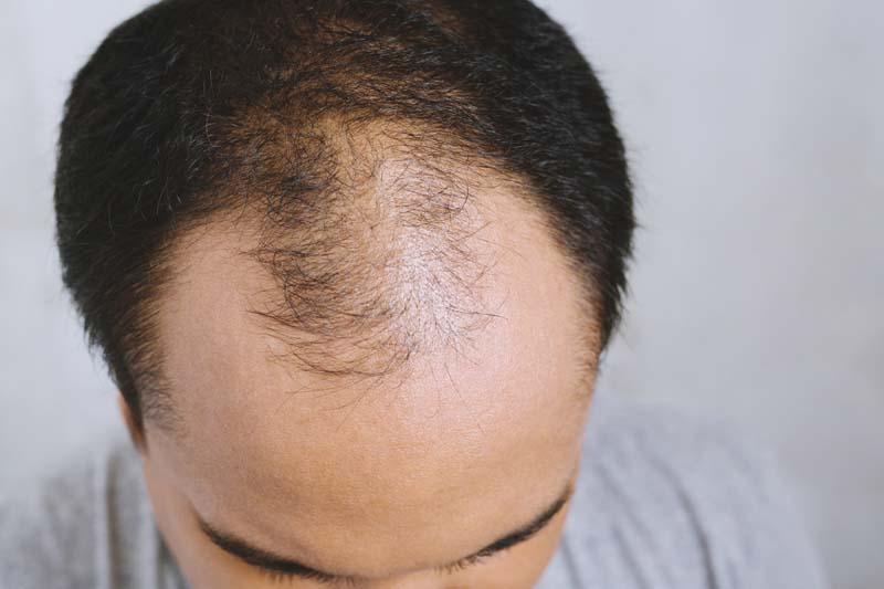 病気 髪の毛 が 抜ける