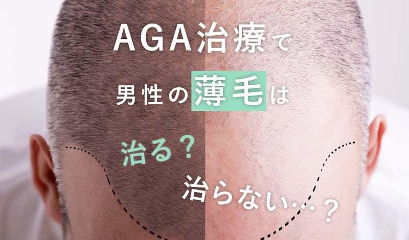 AGA治療では男性の薄毛は治らない?~アンケート調査で分かった現実