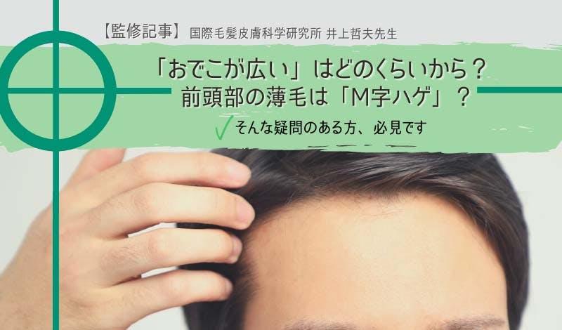 前頭部の薄毛の悩みは解決できる?手でおでこの広さを測ってみよう