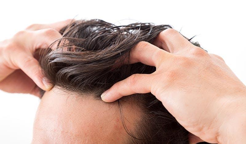 ハゲ予防の代表的なおすすめの対策を紹介