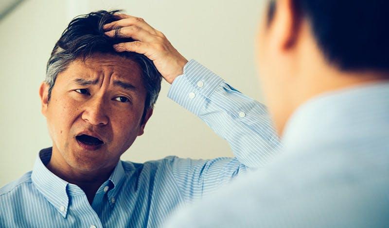 実は3割の人が頭皮ニキビ経験者!?  対策をした人の67.8%は改善傾向に。