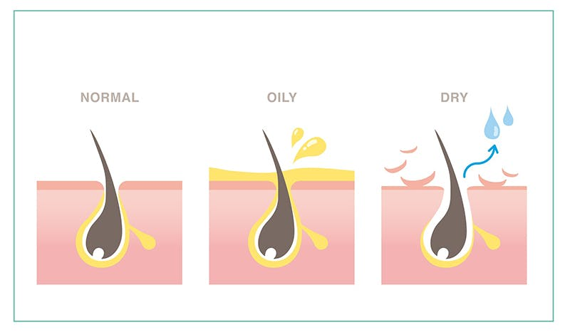 あなたは脂性肌?乾燥肌?自分の肌質と頭髪状態を知ろう