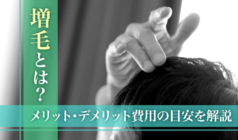 髪の量を増やす増毛とは?メリット・デメリットと費用の目安