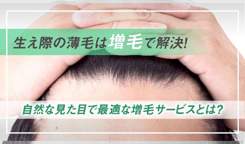 生え際の薄毛は増毛で解決!自然な見た目で最適なサービスとは