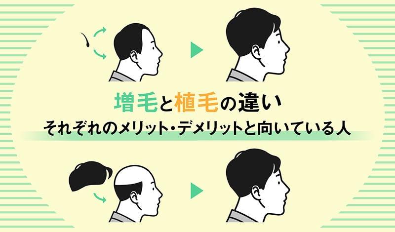 増毛と植毛の違いとメリットデメリット
