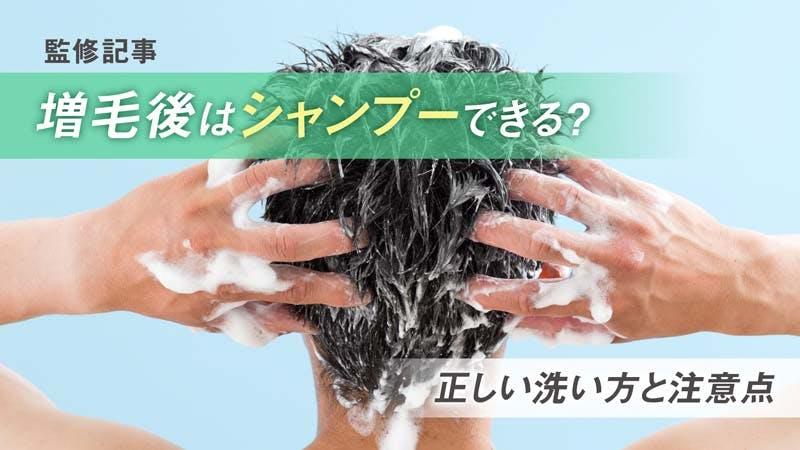増毛後にシャンプーはできる?正しい洗い方と洗髪時の注意点