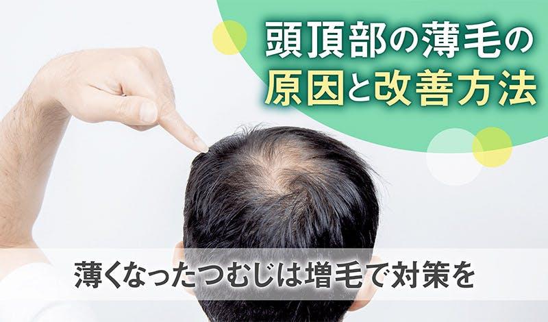 頭頂部の薄毛の原因と改善方法|薄くなったつむじは増毛で対策